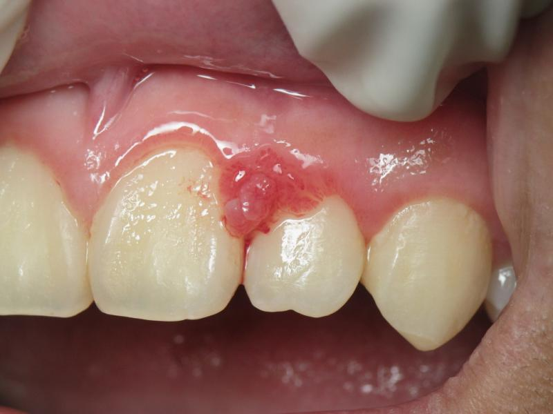 Recognizing And Treating Gingivitis Capital Dentistry General